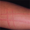 Week 3 Acute Inflam  Dermatoses- Westra Flashcards by | Brainscape