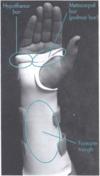 A image thumb