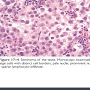 Pathology PLE