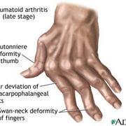 MSK- Rheumatology