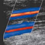 Vascular Sonography