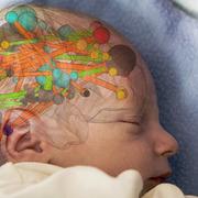 Pediatrische Neuropsychologie