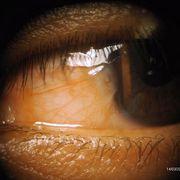 Signos y síntomas en oftalmología