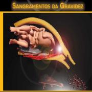 Med: Sangramentos da Gravidez - GO