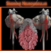 Med: Sínd. Neurovascular - CM