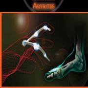 Med: Artrites - CM