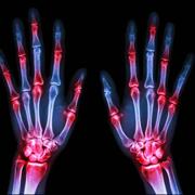 Rhumatologie-Orthopédie