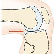 MOIANL - Knee