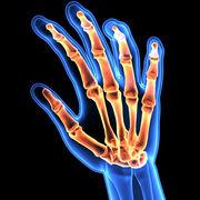 MSK - Rheumatology