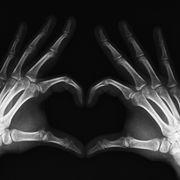 Terceiro radiologia