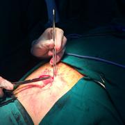 Internato Cirurgia - 4ª Prova