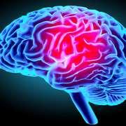 AVC (Neurologie)