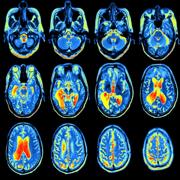 M&M Radiology