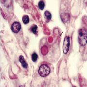 MICROBIOLOGIA PARASITOS A