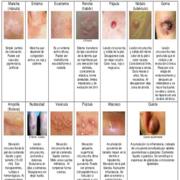 1.- Clínica de Dermatología Primer Parcial.