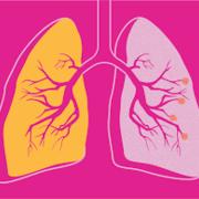 COPD RCM week 2