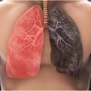 Lung Cancer CAN week 1
