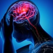CM - Neurologia