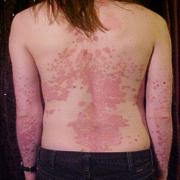 KL Dermatologie