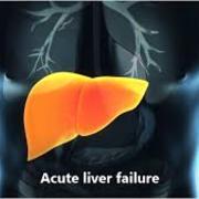 Liver failure GIM week 3