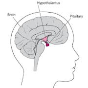 Pituitary tumour EAR:1