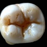 BDS3 Operative Dentistry