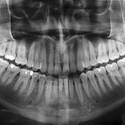 Radiology 2nd year