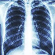 KB-CV radiology