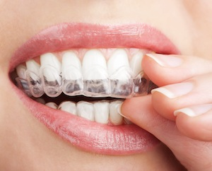 Don't Stress About Straightening Your Teeth
