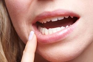5 Causes of Sensitive Teeth