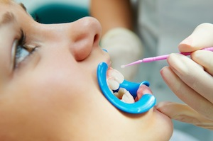 Dental Sealants Protect Hard To Reach Places