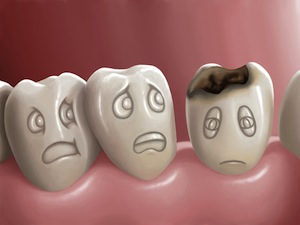 Not All Cavities Are The Same—Know The Different Types