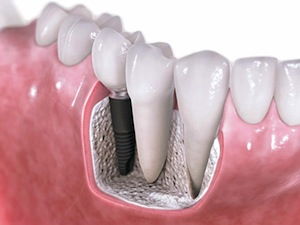 Missing teeth? Try dental implants!