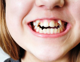 Be Aware Of Oral Health Problems Unique To Your Children