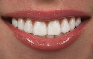 Why Choose Porcelain Veneers?