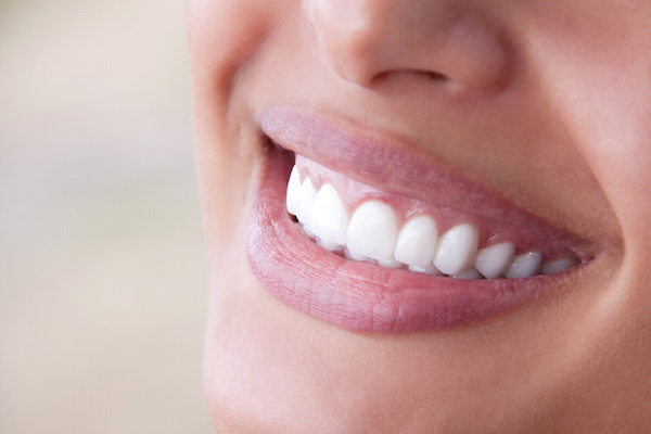 Veneers or Crowns: Which is Right for You?