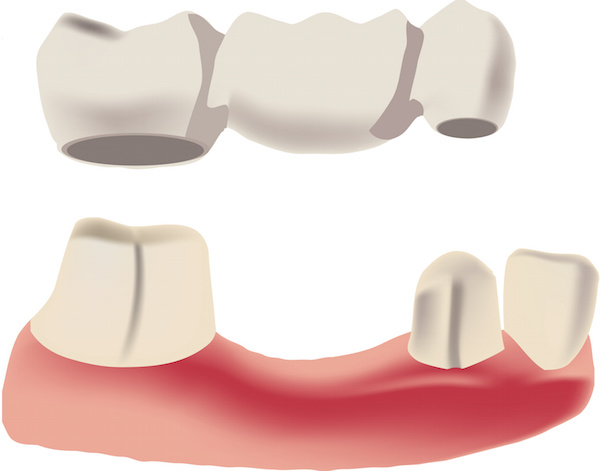 Dental bridge options