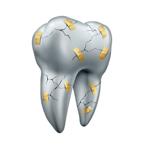 Clinical practice guidelines for caring for restorations