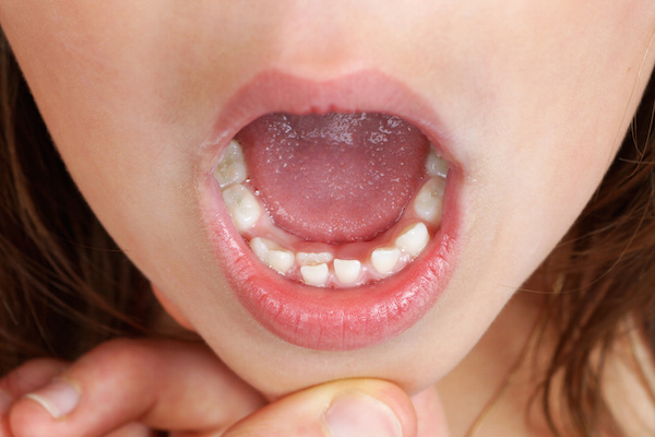 Kid with permanent tooth, bottom incisor, growing and pushing baby tooth out
