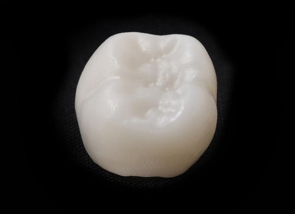 ceramic crown in dental laboratory