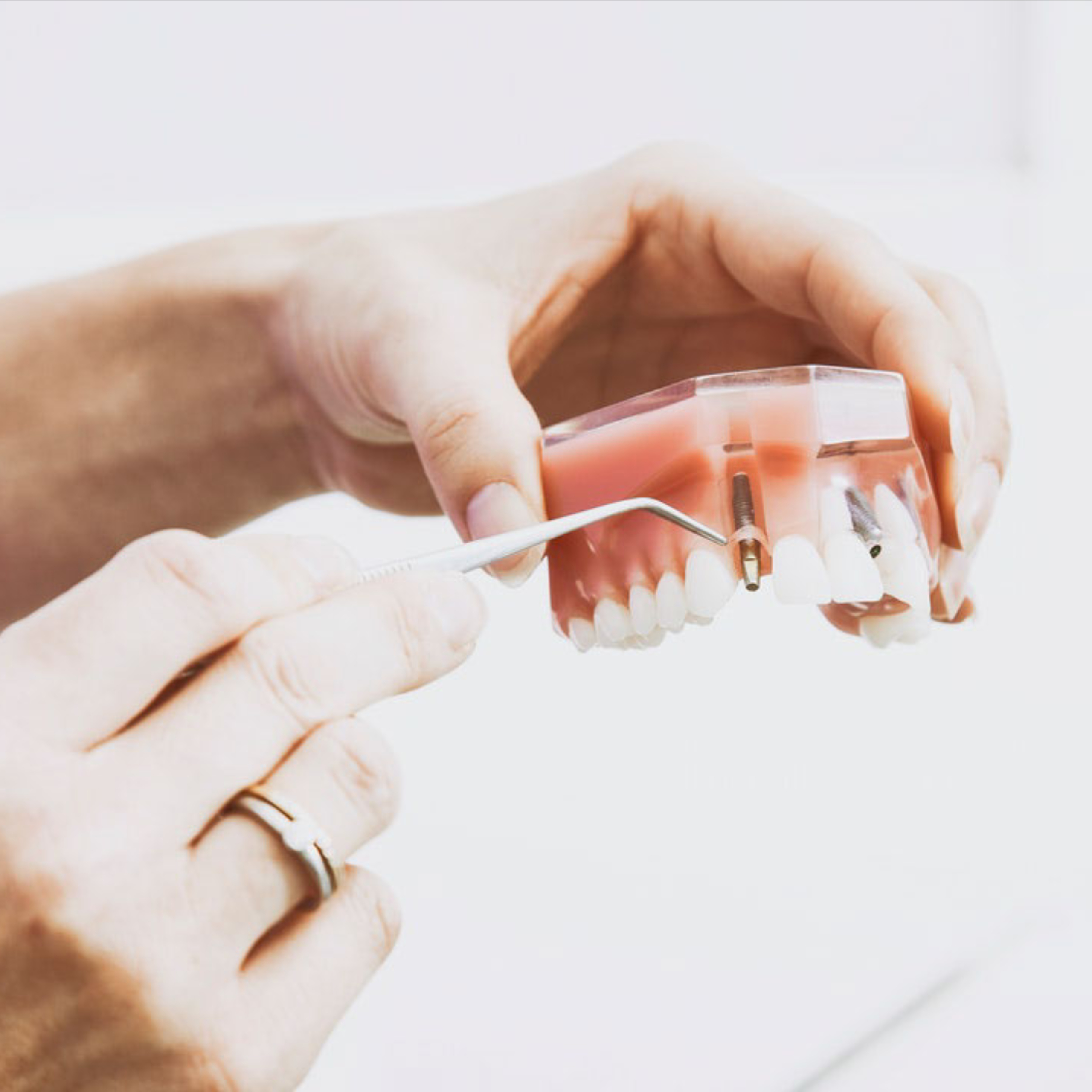 Dentist examining the root of a tooth for a cavity.