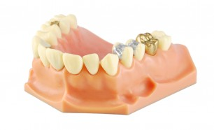 dental model showing different types of treatments