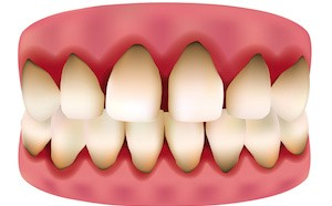 Risk factors & Early Signs of Gum Disease