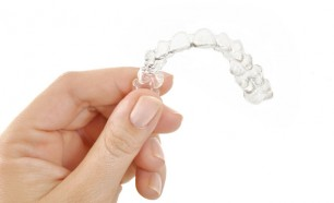 clear dental retainer