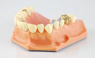 amalgam filling on false teeth