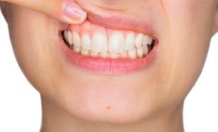 gum health
