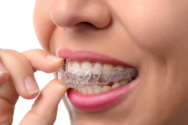 12 months straight teeth