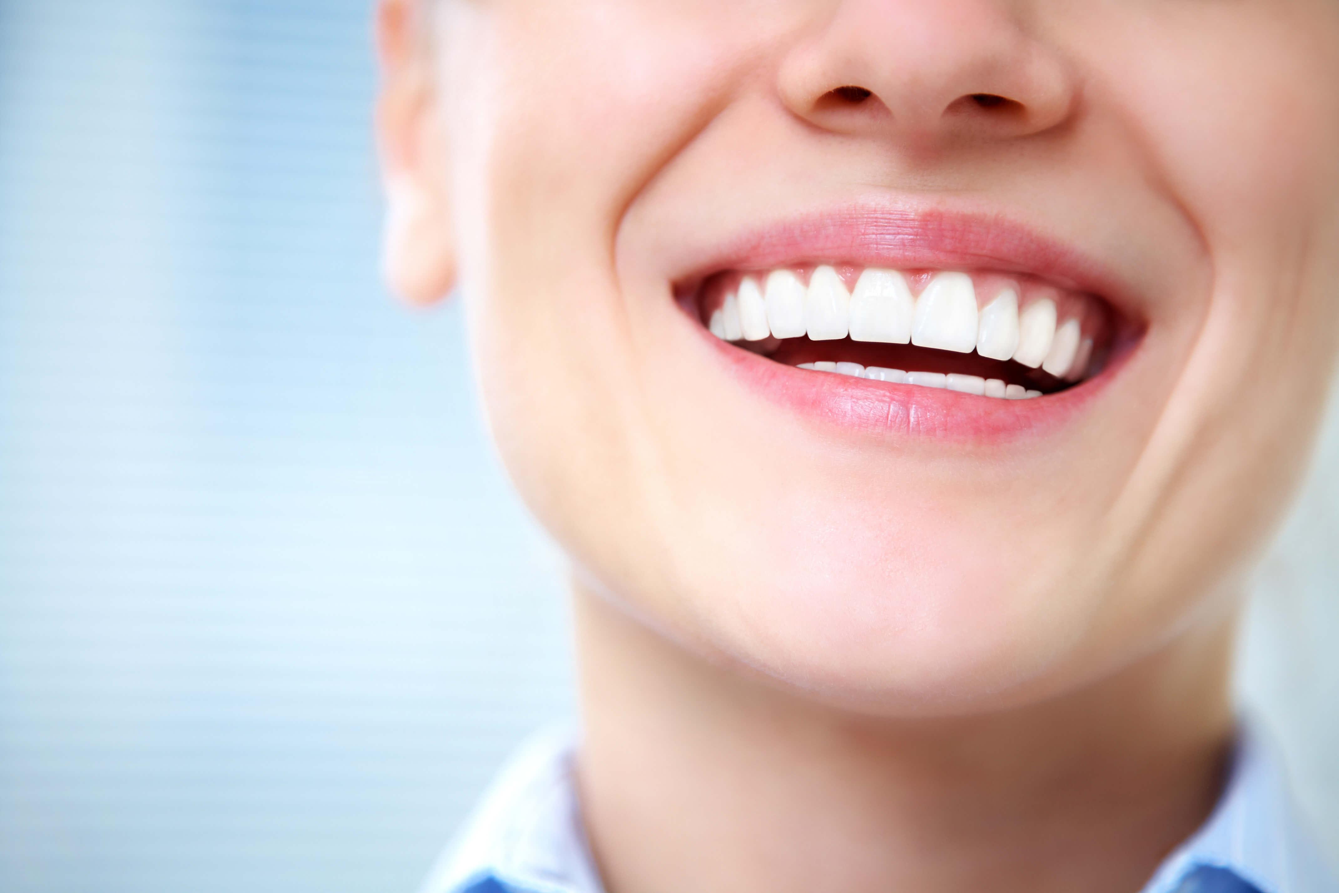 Botox smiles