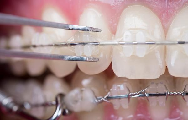 Tips for Getting Your Braces off Sooner - Reddick Orthodontics
