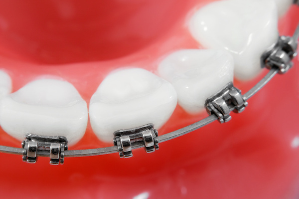 Broken Braces? Here's What You Need To Know - Reddick